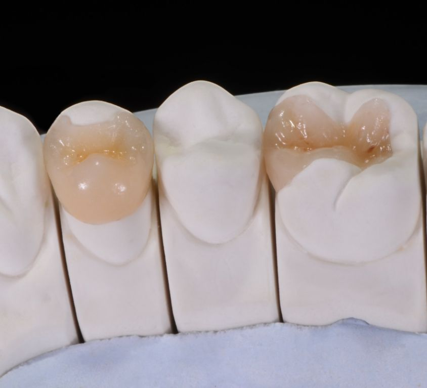 Partial crowns