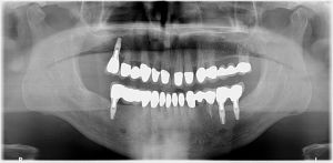 Implantologie Röntgen